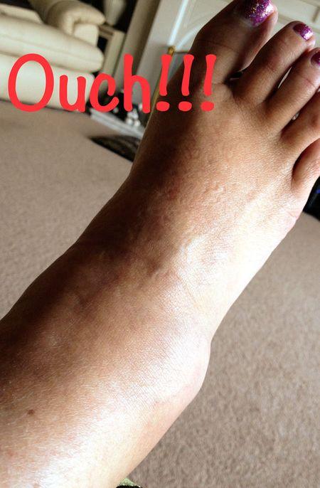 Foot-web